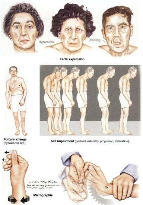 Motor Symptoms of Parkinson's disease--There are many